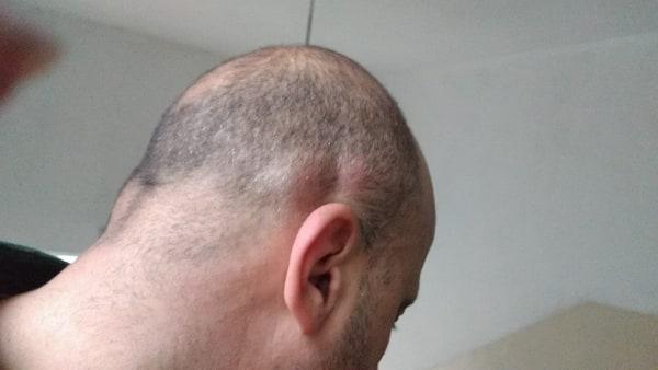 4 хематоми на главата на Георги Караколев, който е в тежко състояние в болницата.